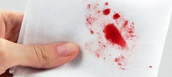 Kızlık Zarı Kanı İle Normal Kan Arasındaki Fark